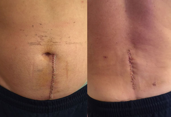 scar and stitches from back surgery